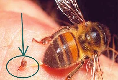 как удалить жало пчелы осы шмеля шершня
